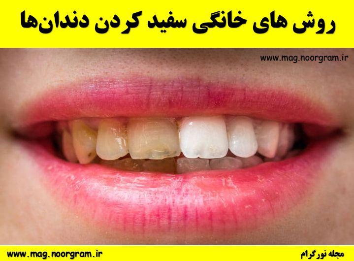 روش های خانگی سفید کردن دندانها