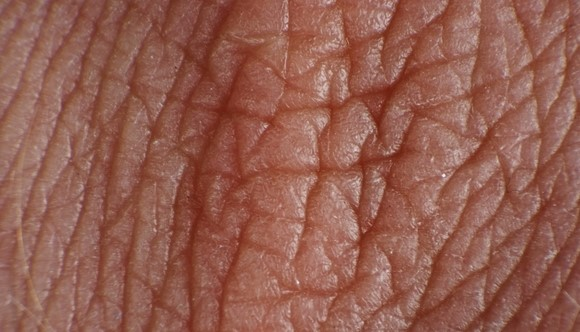 انواع پوست بدن