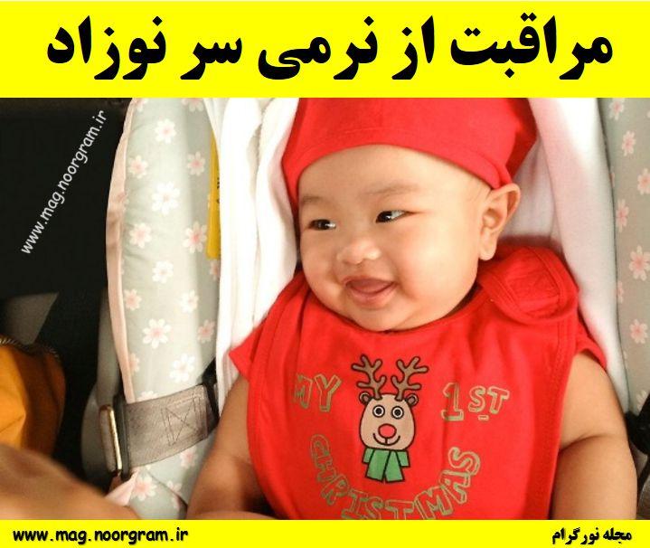 مراقبت از نرمی سر نوزاد