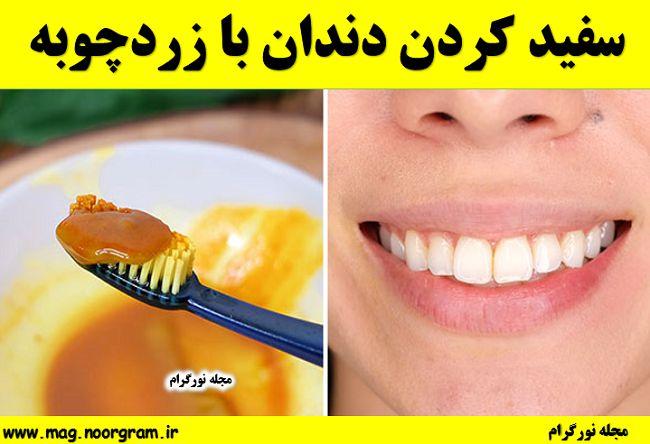 سفید کردن دندان با زردچوبه