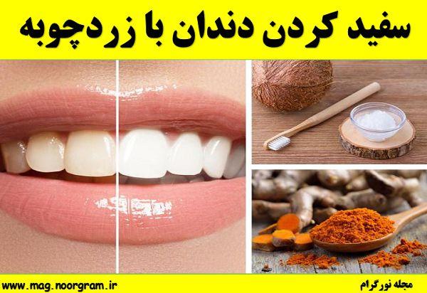 سفید کردن دندان زردچوبه