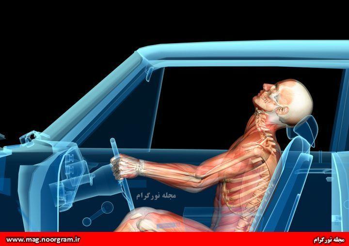 آسیب به گردن در تصادفات رانندگی