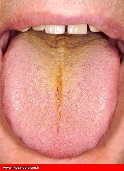 دلایل زردی زبان