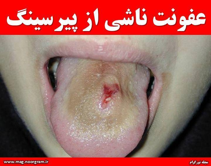 عفونت ناشی از پیرسینگ